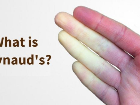 Raynaud's Disease May Occur